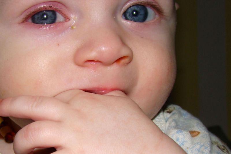 Хламидиоз у новорожденных