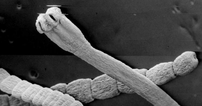 метеоризм от паразитов