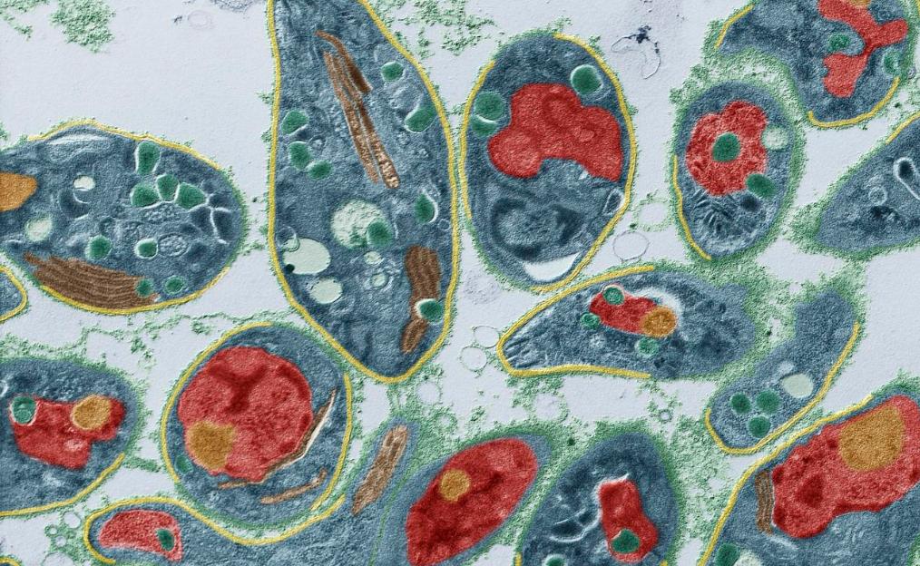 Оппортунистические инфекции и заболевания при ВИЧ