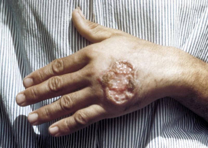кожный амебиаз