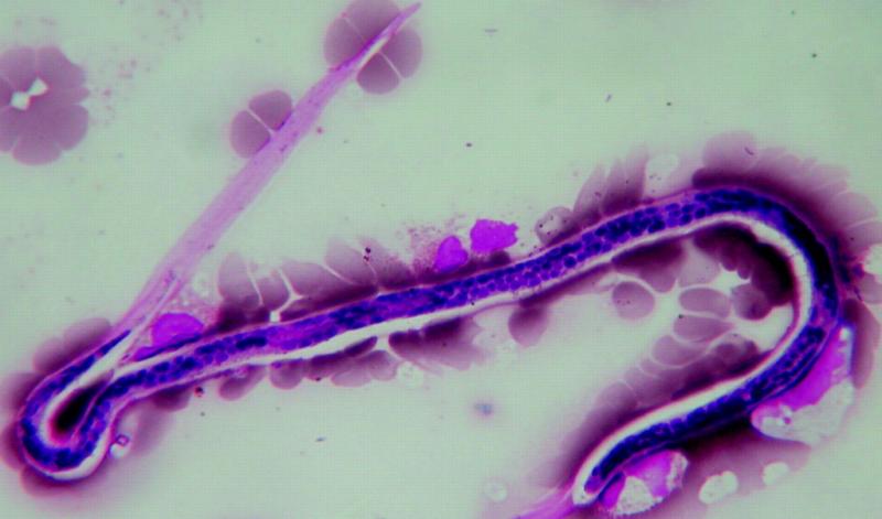 нитчатки паразиты