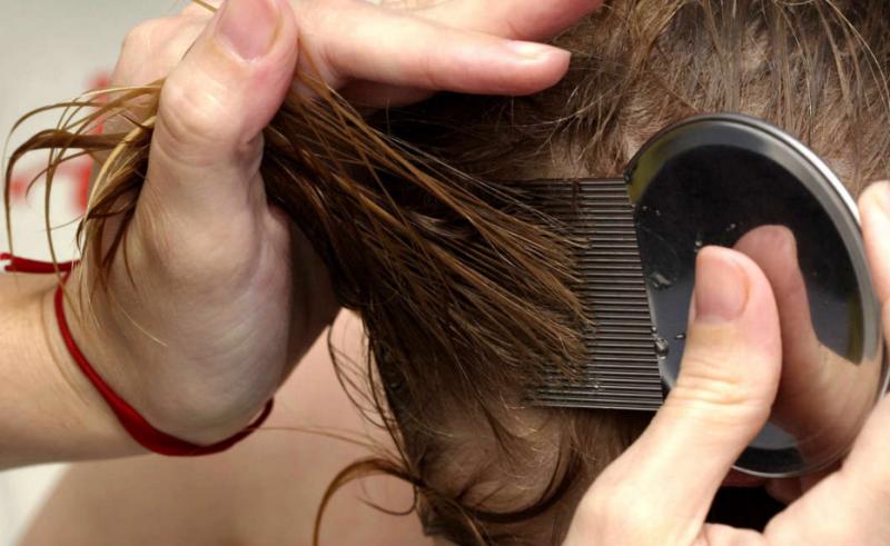 вычесываем волосы от вшей