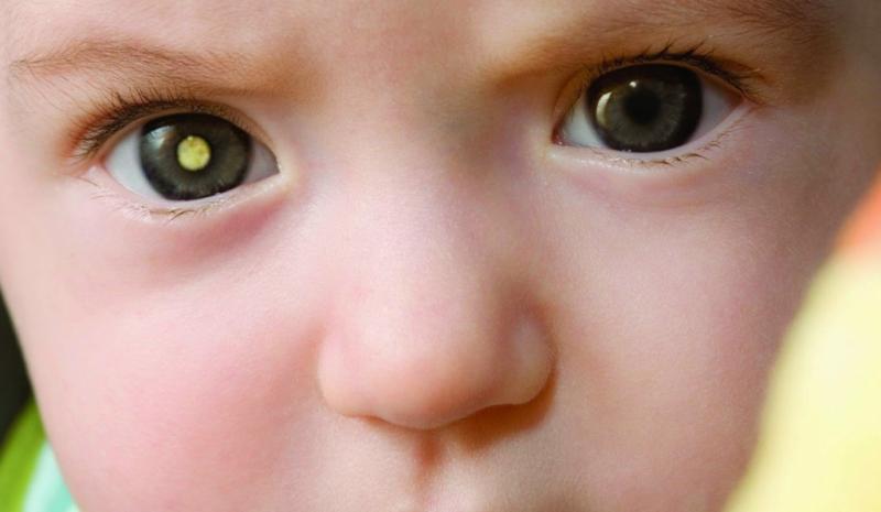 заболевание сетчатки глаз у детей