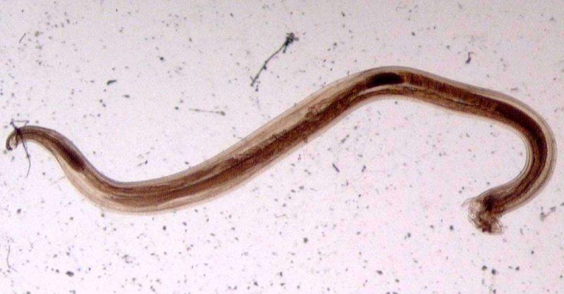 паразиты червяки в организме человека видео