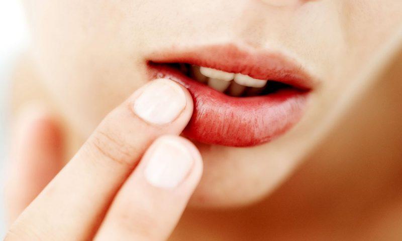 как лечить губную малярию