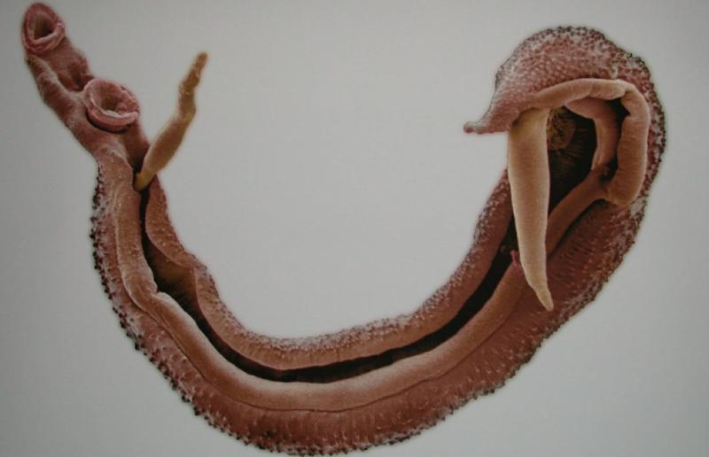 Шистосома