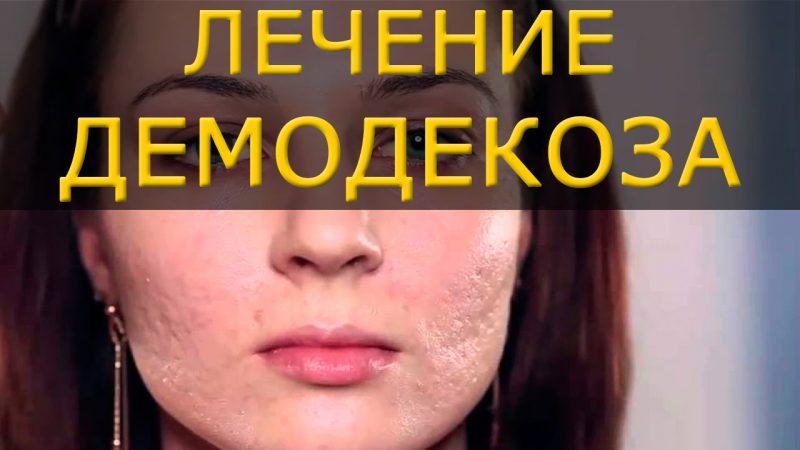 лечение демодекоза лица
