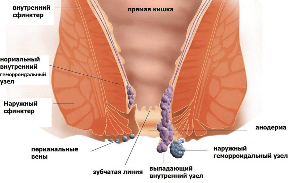Геморрой у женщин причины и лечение в домашних условиях