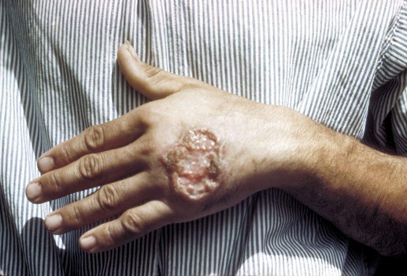 симптомы лейшманиоза