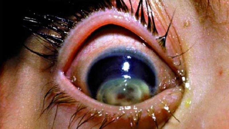 панофтальмит – осложнение гонореи глаз