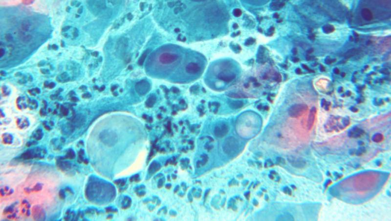 настойка из лисичек от паразитов рецепт отзывы