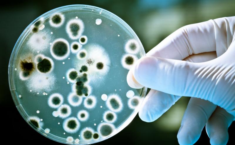 Микробиологический метод