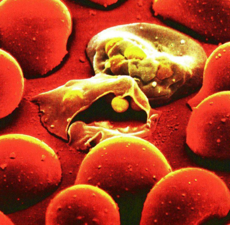 фото малярийный плазмодий