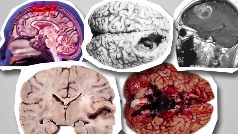Виды нарушений мозга амебой