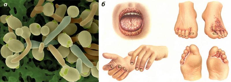 грибки у человека