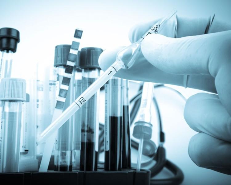 лабораторные исследования цепня