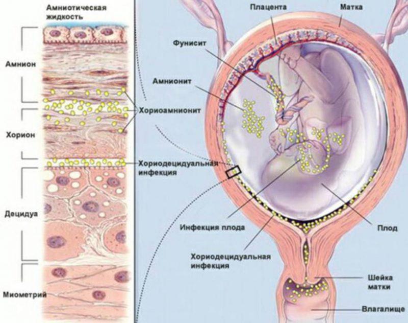опасность внутриутробной инфекции