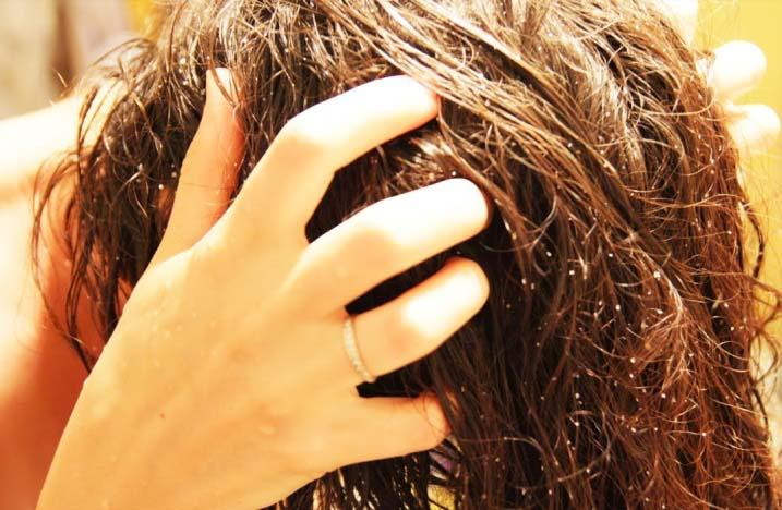 Как вычесать из волос гнид
