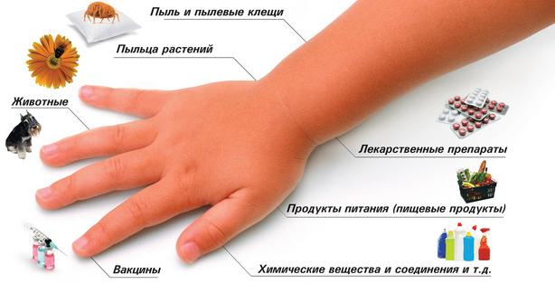 Аллергены паразитов