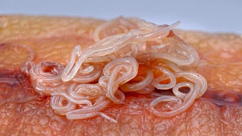 паразиты в пищеварительной системе человека