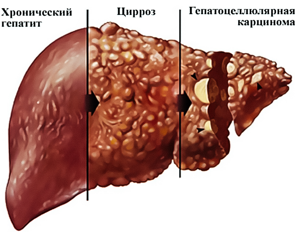 фиброз печени и гомеопатия всех Мировых