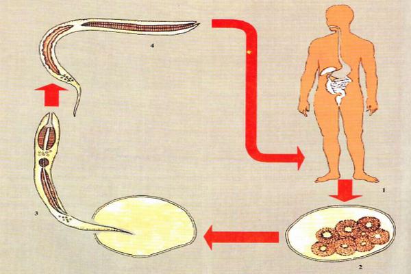 Жизненный цикл анкилостомы