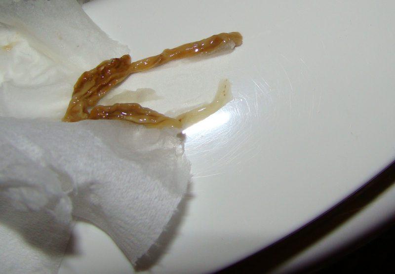 паразиты из кала