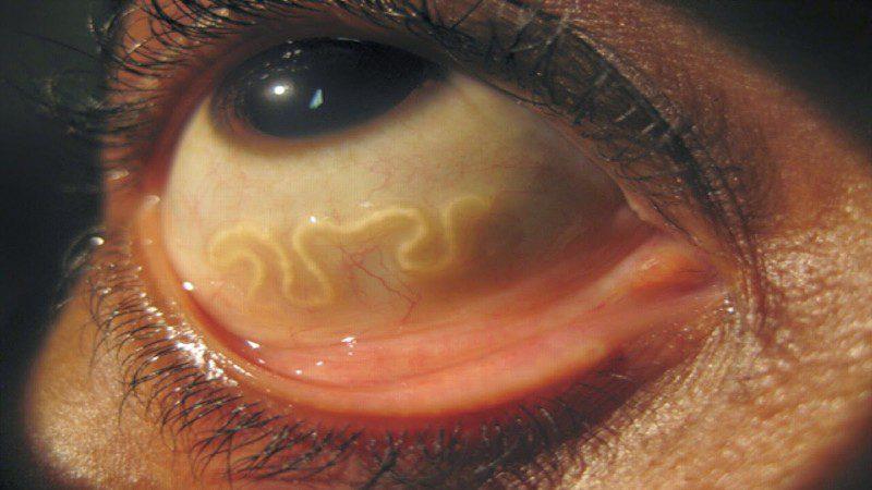 черви в глазу
