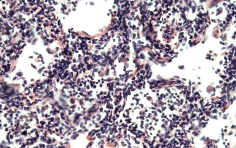 хламидиоз респираторный