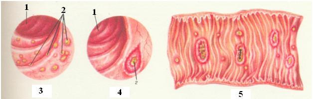 кишечный амебиаз