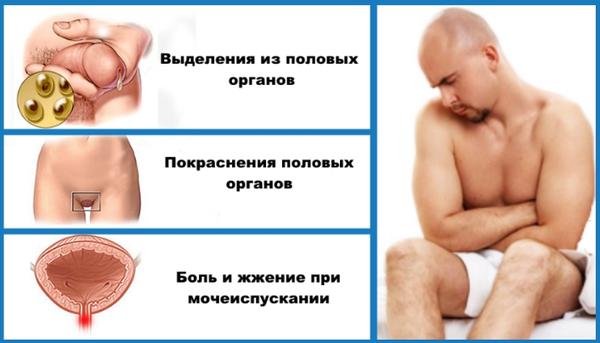 признаки хламидиоза