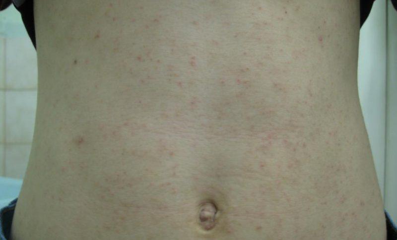 сыпь по телу