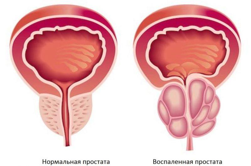 воспаления предстательной железы