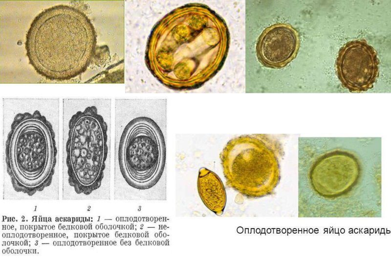 яйца аскарид на разных стадиях