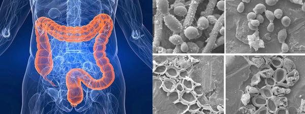 осложнения кишечных заболеваний