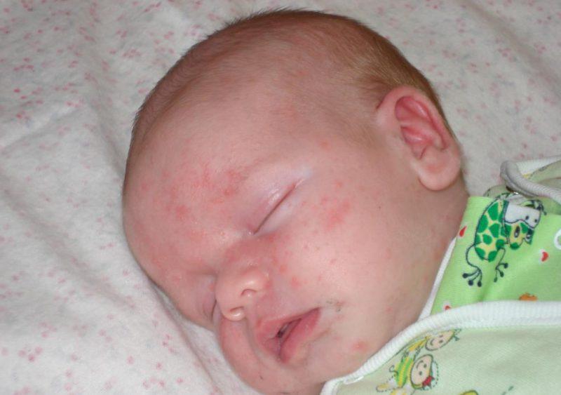 младенец с ослабленным иммунитетом