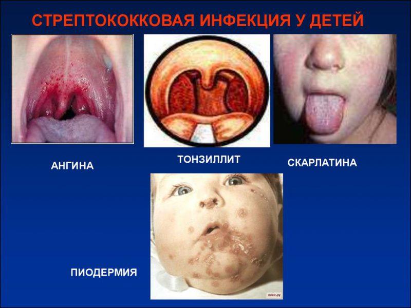 инфекция у детей