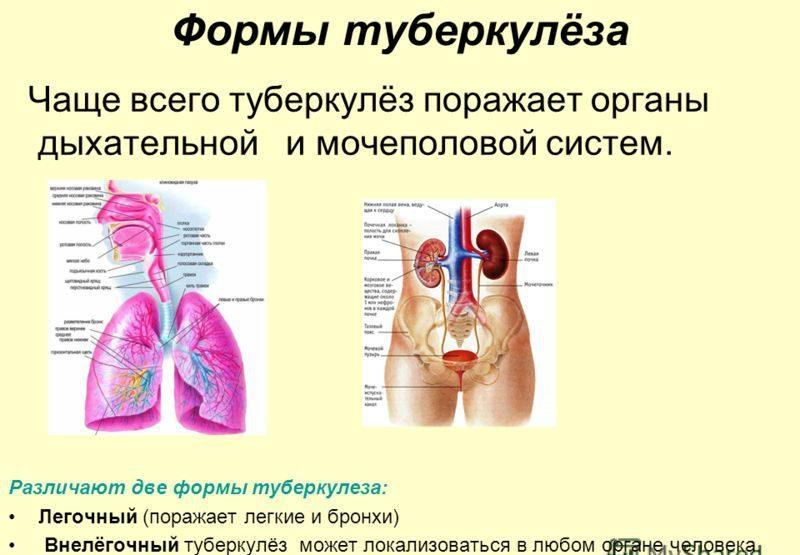 различия туберкулеза у человека