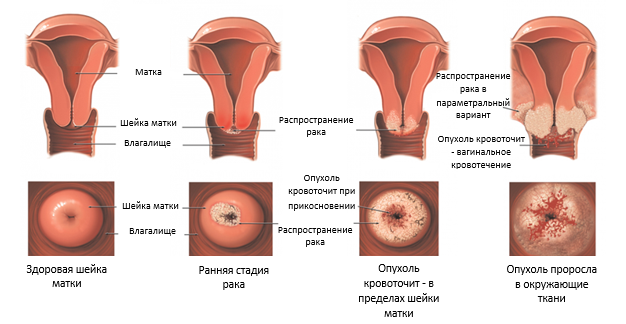 стадии развития