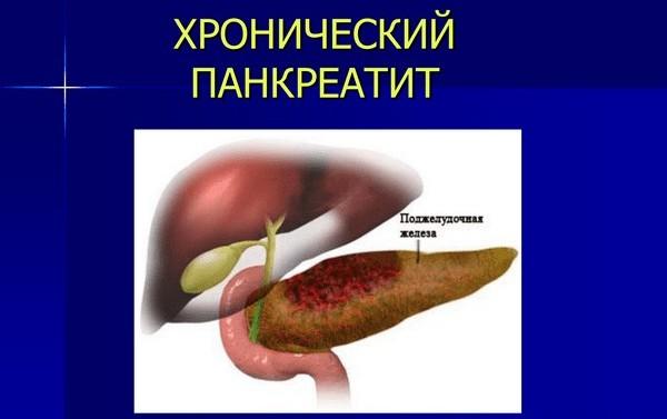 панкреатит