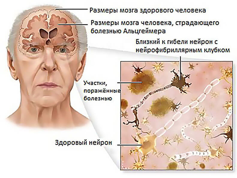 болезнь Альцгеймера