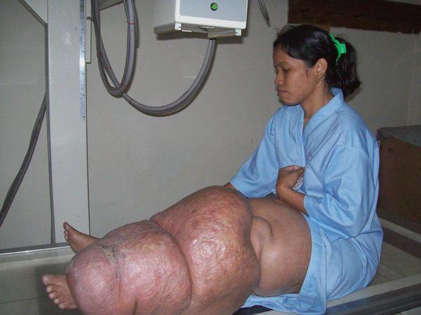 диагностика слоновой болезни