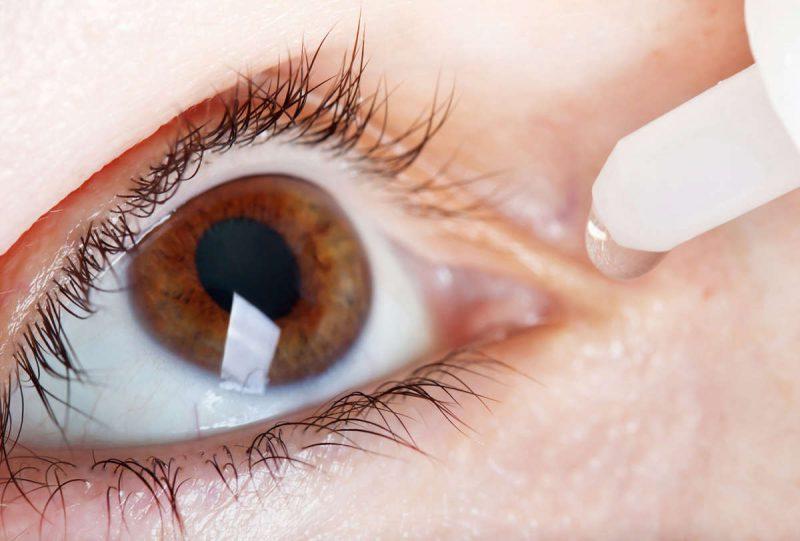 лечение глазного хламидиоза
