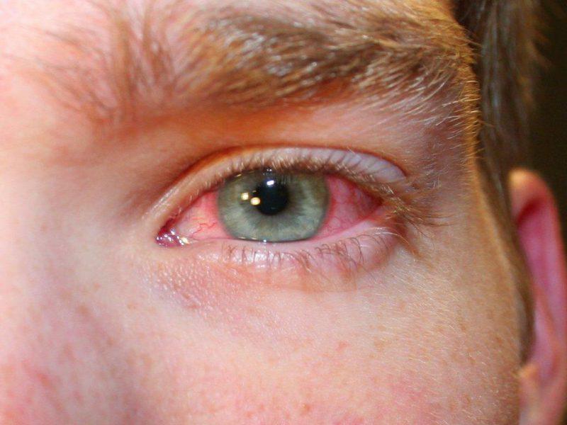 покраснение глазных белков