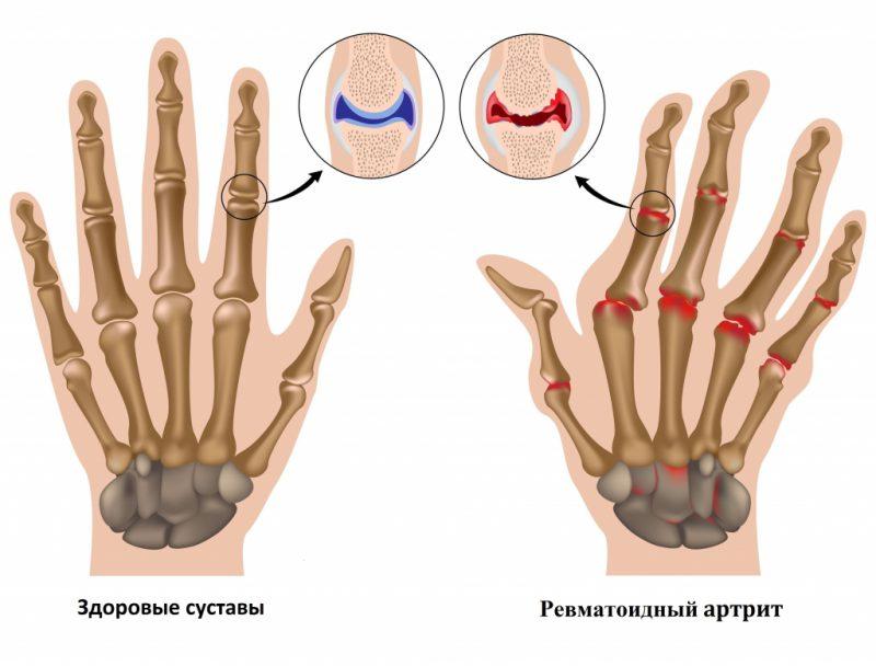 ревматоидный артрит и здоровый сустав