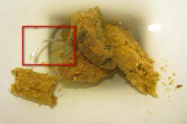 Яйца глистов и личинки в кале