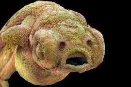 Как вывести паразитов из организма человека