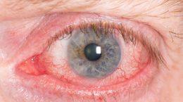 Демодекоз глаз: симптомы и лечение