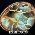 Эхинококкоз: основные симптомы и методы лечения