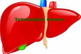 Эхинококкоз печени у человека: фото и симптомы